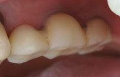 implantcase01